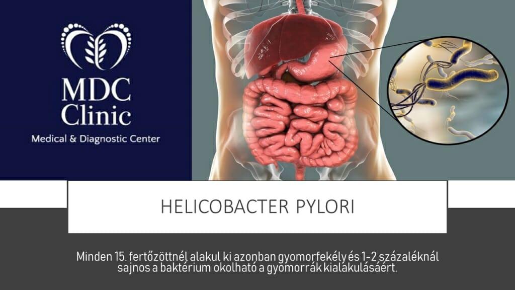 HELICOBACTER PYLORI FERTŐZÉS
